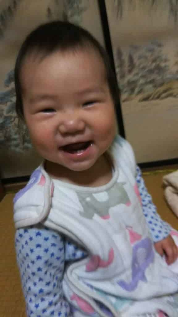 アトピー 赤ちゃん 改善