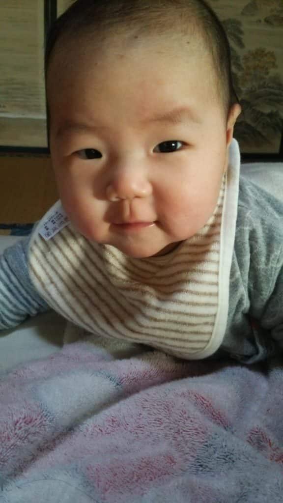 赤ちゃん 湿疹