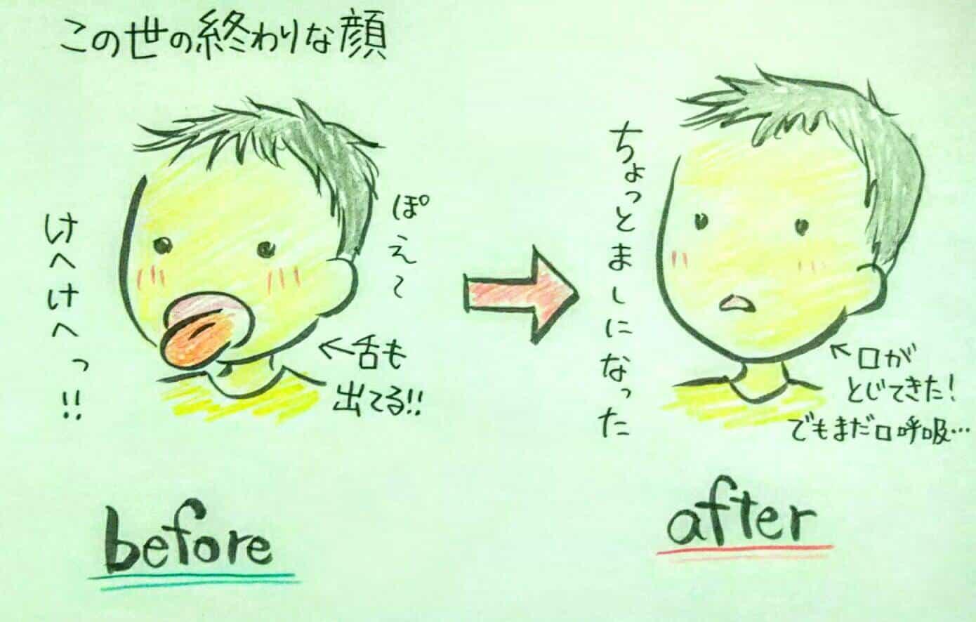 口呼吸 改善