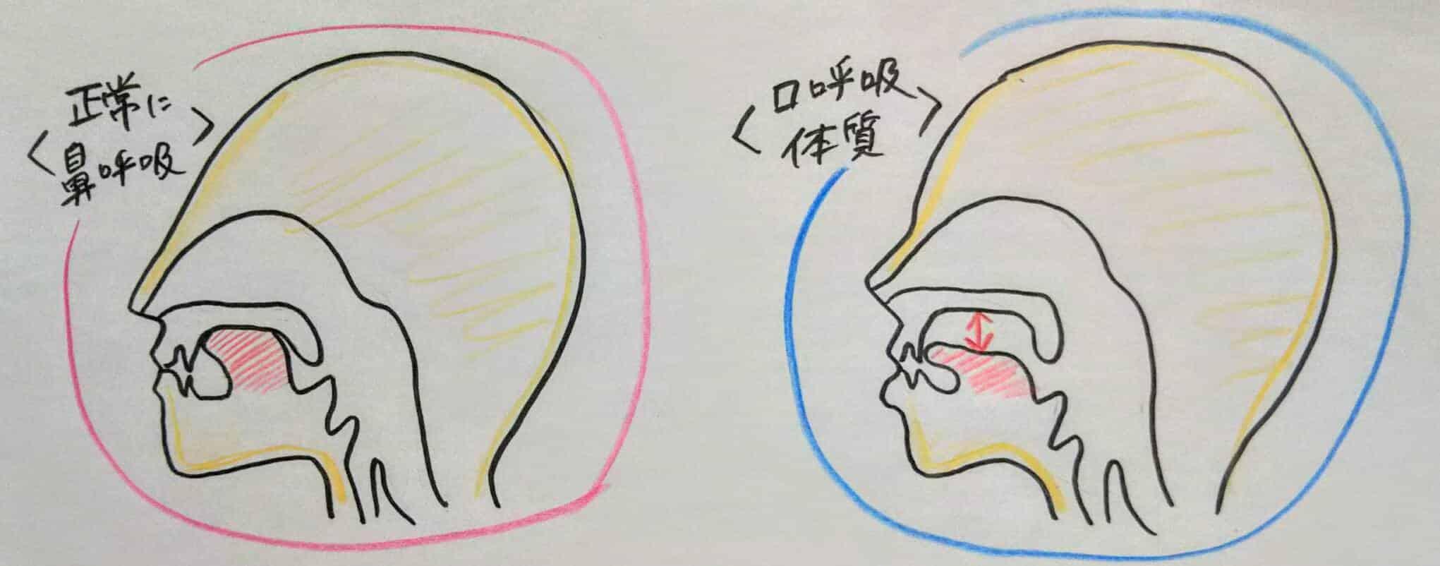 口呼吸 舌の位置