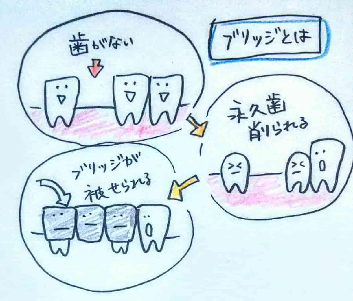 ブリッジ 歯